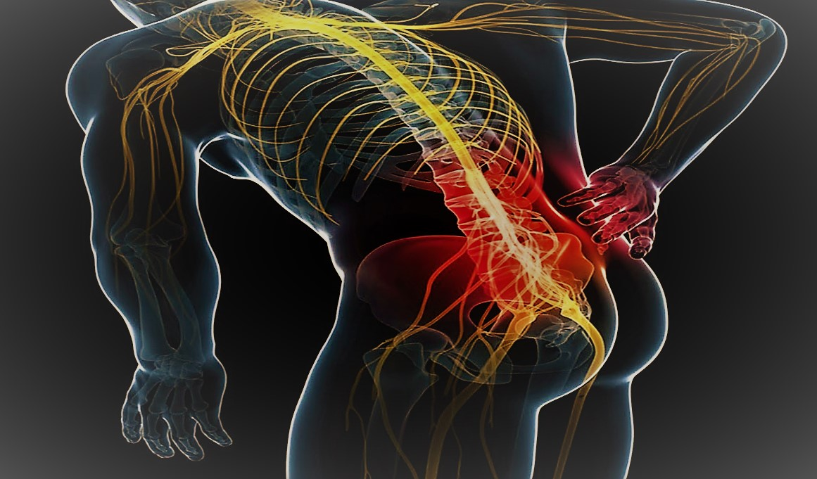sciatica lombosciatalgia sebastian guzzetti bergamo dolore sciatalgia