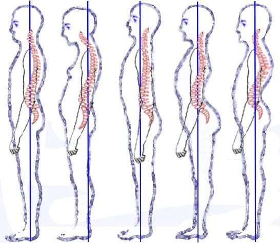 cervicale postura dolore collo male cervicalgia