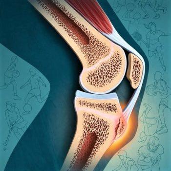 tendinopatia rotulea osteopata bergamo sebastian guzzetti ginocchio dolore