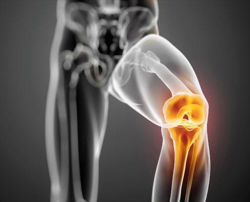 dolore ginocchio tendinopatia