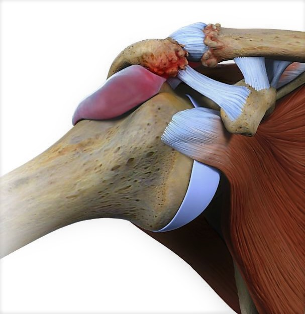 il dolore alla spalla