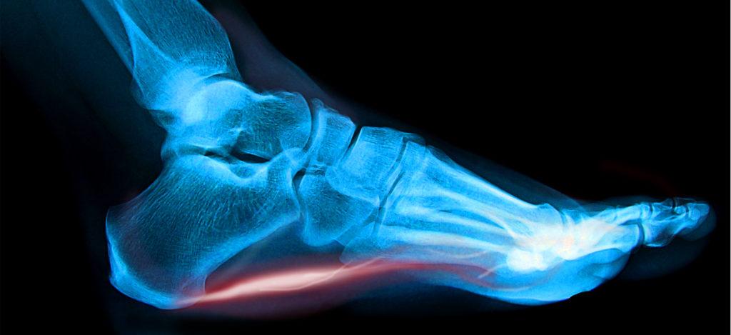 dolori ai piedi osteopata bergamo sebastian guzzetti