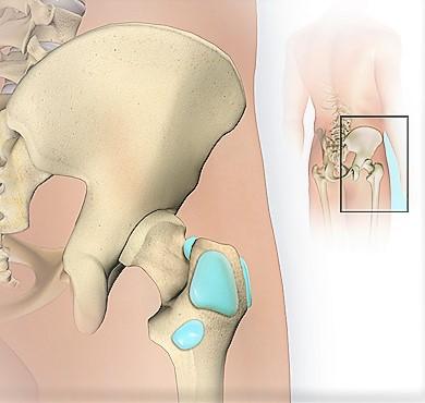 dolore all'anca
