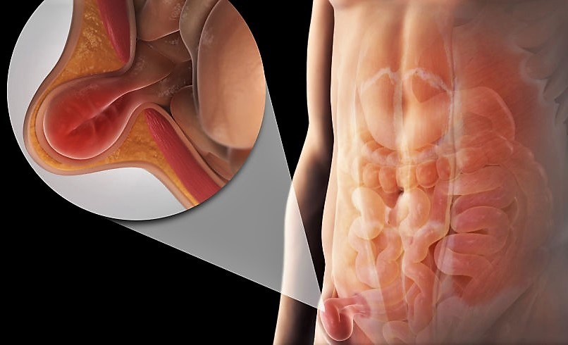 dolore allanca e al bacino