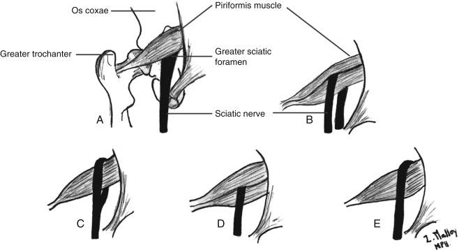 piriforme nervo sciatico