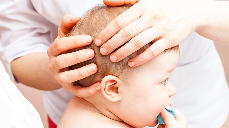osteopata plagiocefalia