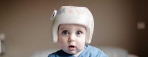 casco plagiocefalia