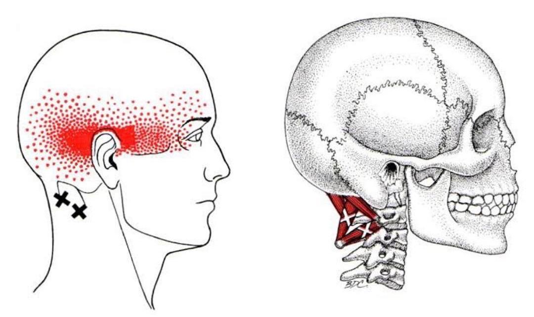 mal di testa da cervicale